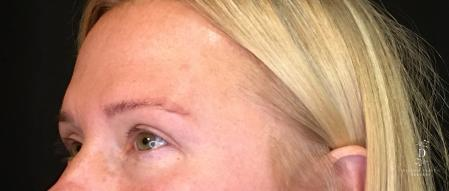 Eyelid Surgery: Patient 9 - After Image 3
