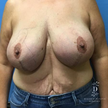 Breast Lift With Implants: Patient 4 - Before Image