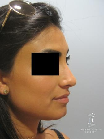 Rhinoplasty: Patient 7 - After Image 2