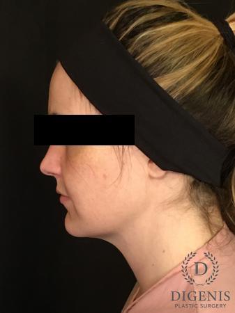 Digenis Refresh Lift: Patient 2 - Before Image 3