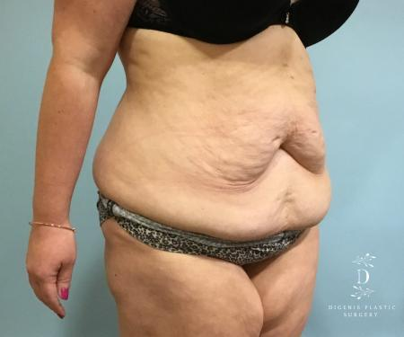 Abdominoplasty: Patient 5 - Before Image 2