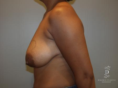 Breast Lift: Patient 2 - Before and After Image 3