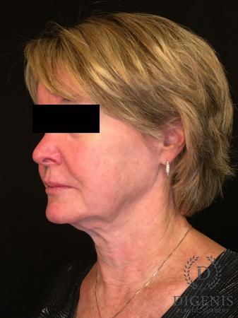 Digenis Refresh Lift: Patient 1 - Before Image 4