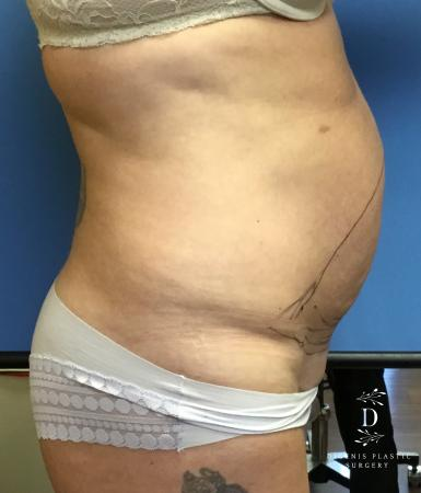 Abdominoplasty: Patient 2 - Before Image 3