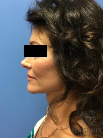 Facelift: Patient 9 - After Image 3