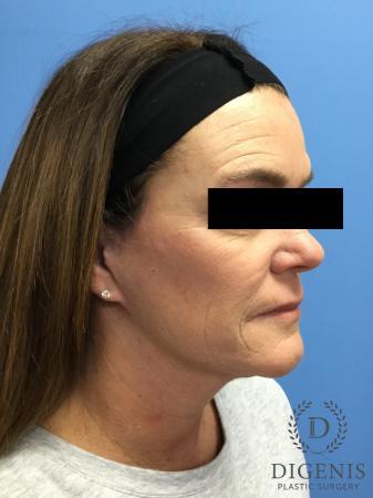 Facelift: Patient 11 - After Image 2