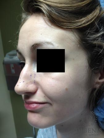 Rhinoplasty: Patient 4 - Before Image 3
