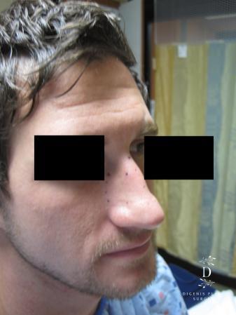 Rhinoplasty: Patient 10 - Before Image 2
