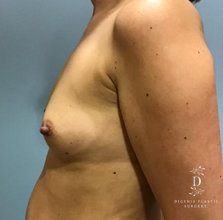 Breast Augmentation: Patient 8 - Before and After Image 5