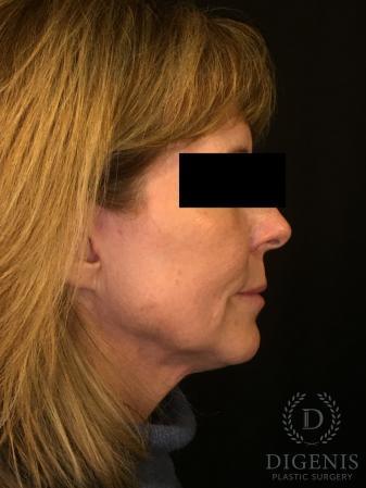 Digenis Refresh Lift: Patient 3 - After Image 3_2