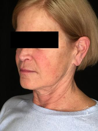 Facelift: Patient 1 - Before Image 4