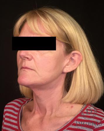 Facelift: Patient 3 - After Image 4