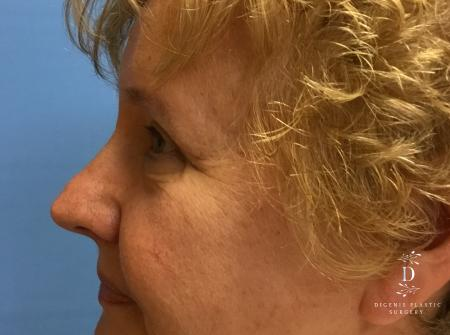 Eyelid Surgery: Patient 3 - After Image 5