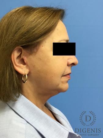 Facelift: Patient 7 - After Image 3