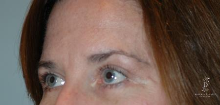 Eyelid Surgery: Patient 2 - After Image 3