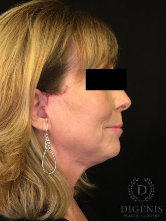 Digenis Refresh Lift: Patient 3 - After Image 3