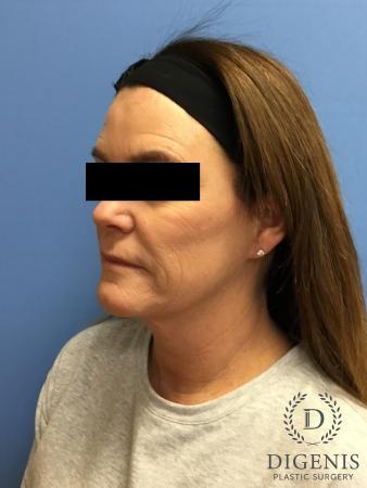 Facelift: Patient 11 - After Image 4
