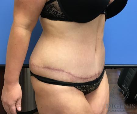 Abdominoplasty: Patient 5 - After Image 2
