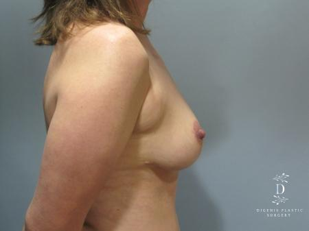 Breast Lift: Patient 5 - After Image 3