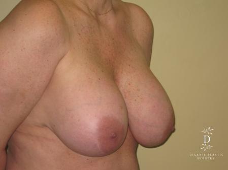 Breast Lift With Implants: Patient 7 - Before Image 2