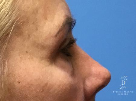 Eyelid Surgery: Patient 5 - After Image 3