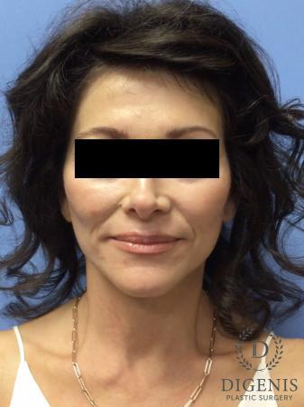 Facelift: Patient 9 - After Image