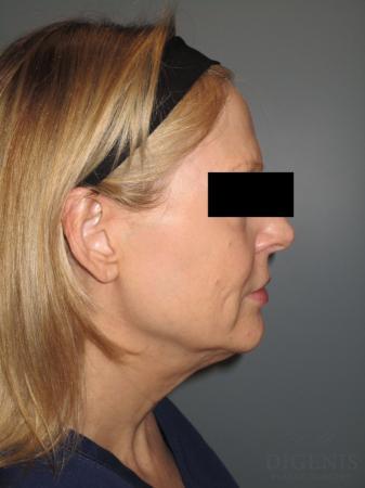 Facelift: Patient 5 - Before Image 3