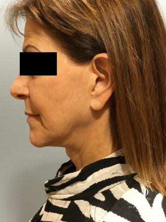 Facelift: Patient 6 - Before and After Image 5