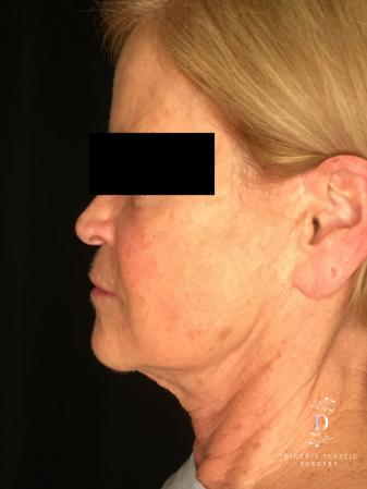 Facelift: Patient 1 - Before and After Image 5