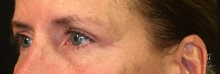 Eyelid Surgery: Patient 1 - After Image 4