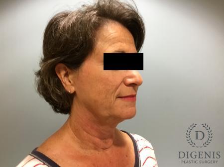 Facelift: Patient 15 - Before Image 2