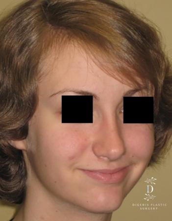 Rhinoplasty: Patient 4 - After Image