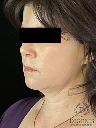 Digenis Refresh Lift: Patient 4 - After Image 4