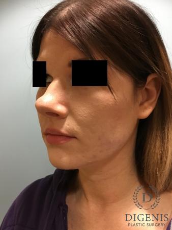 Rhinoplasty: Patient 2 - Before Image 4