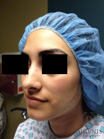Rhinoplasty: Patient 7 - Before Image 4