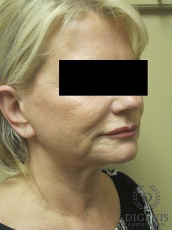 Facelift: Patient 14 - Before Image 2