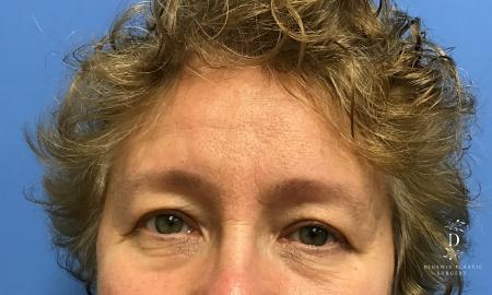 Eyelid Surgery: Patient 3 - Before Image