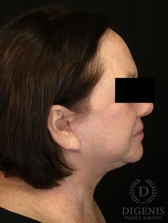 Facelift: Patient 13 - After Image 3