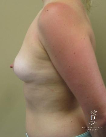 Breast Augmentation: Patient 3 - Before and After Image 5
