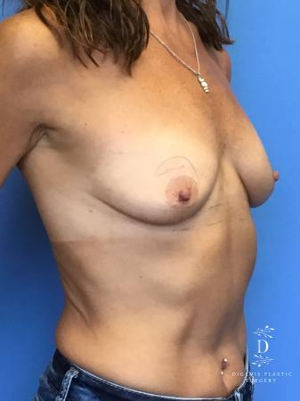 Breast Lift With Implants: Patient 3 - Before Image 4