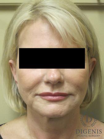 Facelift: Patient 14 - Before Image 1