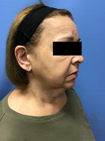 Facelift: Patient 7 - Before Image 2