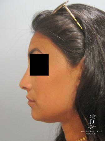 Rhinoplasty: Patient 7 - After Image 5