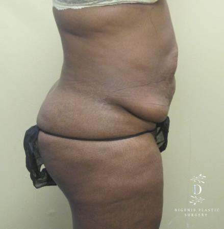 Abdominoplasty: Patient 4 - Before and After Image 3