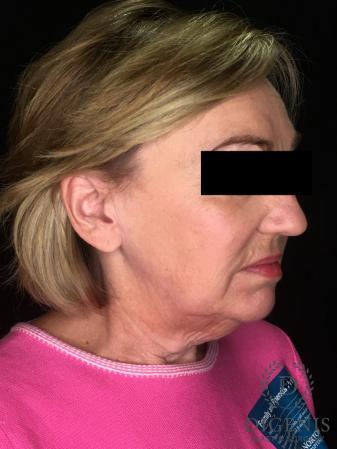 Facelift: Patient 2 - Before Image 4
