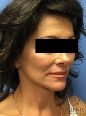 Facelift: Patient 9 - After Image 4