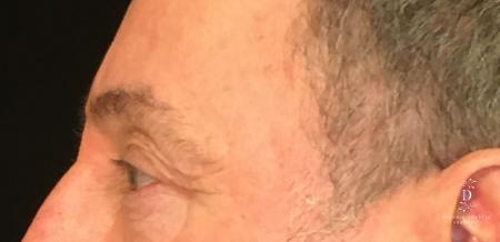 Eyelid Surgery: Patient 1 - Before and After Image 5