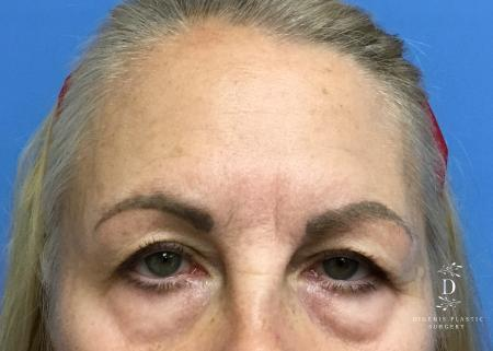 Eyelid Surgery: Patient 5 - Before Image