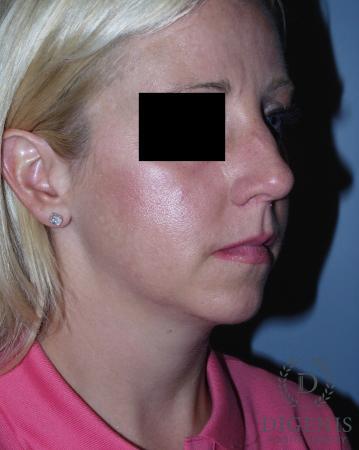 Rhinoplasty: Patient 3 - Before Image 2