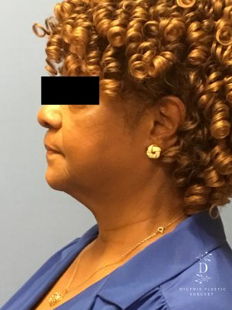 Facelift: Patient 8 - Before and After Image 4